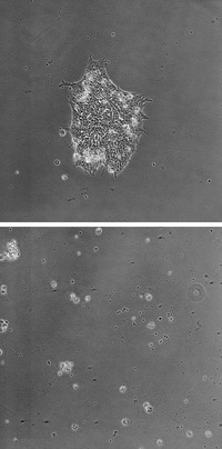 Top image shows a control colony of human embryonic stem cells at 48 hours. The bottom image shows, also at 48 hours, a colony of human embryonic stem cells treated to sidestream smoke from a harm reduction brand (the colony has been killed by the smoke treatment). Image credit: Talbot lab, UC Riverside.